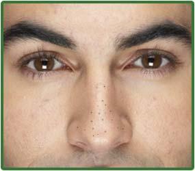 Image result for blackheads men